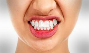 آیا تزریق بوتاکس بهترین درمان دندان قروچه است؟