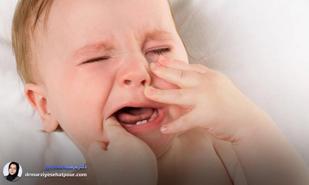 درمان سریع آفت دهان کودکان