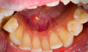 تشخیص و درمان غیر جراحی بیماری های غدد بزاقی