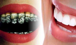 عوارض دهانی و دندانی سیگار – تاثیر دخانیات بر دهان و دندان