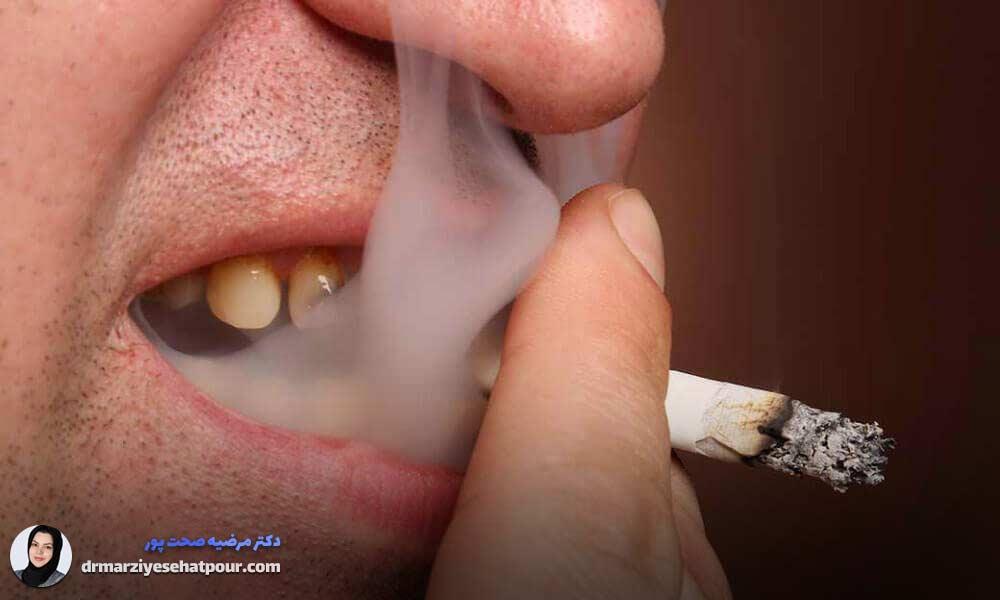 سیگار عاملی برای نابودی دندان ها