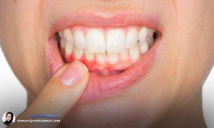درمان قطعی آبسه دهان و دندان