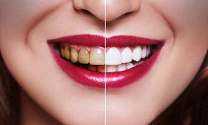 عوارض مصرف الکل بر دهان و دندان