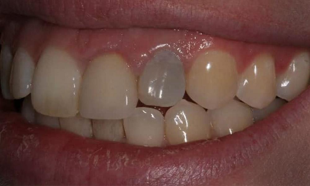 6 علت تغییر رنگ دندان